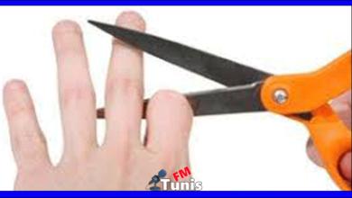 شجار عائلي ينتهي بقطع الزوجة لإصبع زوجها