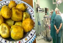 عملية جراحية مستعجلة لشخص أكل 351 حبة تين شوكي