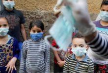 ظهور أعراض جديدة لدى الأطفال المصابين بفيروس كورونا