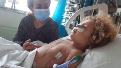 طفل الـ 4 سنوات يدخل في غيبوبة بسبب كورونا