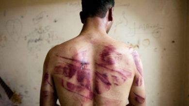 تلذذوا بتعذيبه وحرقوا خصيتيه بولاعة