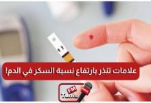 انتبه علامات بجسمك تنذر بارتفاع نسبة السكر في الدم