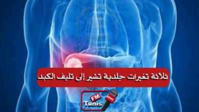 ثلاثة تغيرات جلدية تشير إلى تليف الكبد