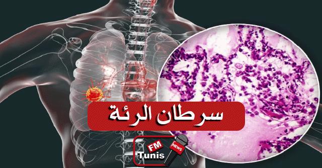 """خمس """"علامات وأعراض مفاجئة"""" يجب ألا نتجاهلها قد تدل على الإصابة بسرطان الرئة"""