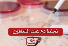 متى يمكن أن يحدث تجلط دم عند المتعافين من كوفيد-19 وكيفية الوقاية منه