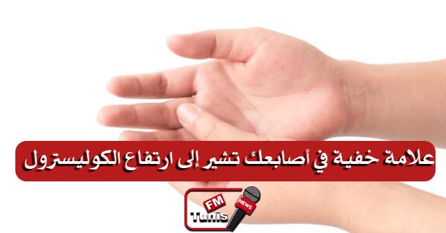 علامة خفية في أصابعك تشير إلى ارتفاع الكوليسترول