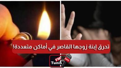 قفصة إمرأة تحرق إبنة زوجها القاصر في أماكن متعددة من جسدها